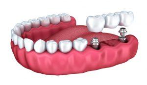 dental crown and bridge
